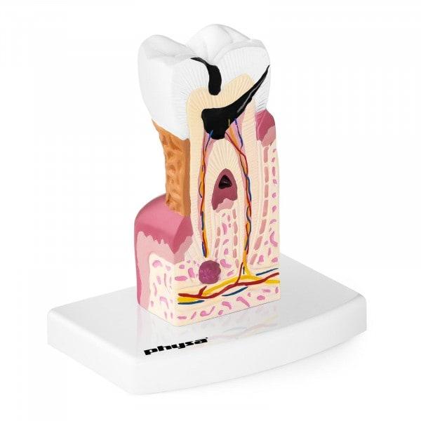 Modello anatomico dente - molare malato